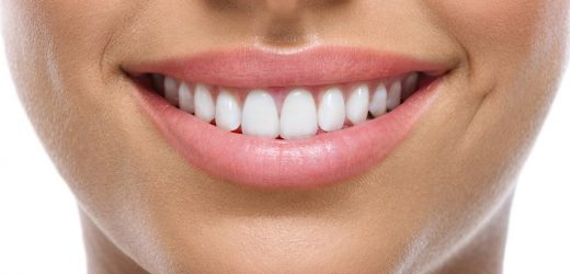 4 Reasons to Have Cosmetic Dental Treatment in Thailand
