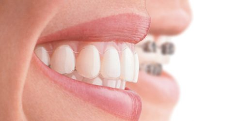 All That You Must Know About Invisible Braces and Invisalign