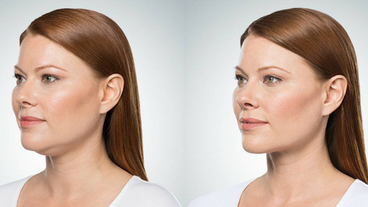Treat double chin condition with care