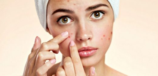 How to Manage Common Skin Problems