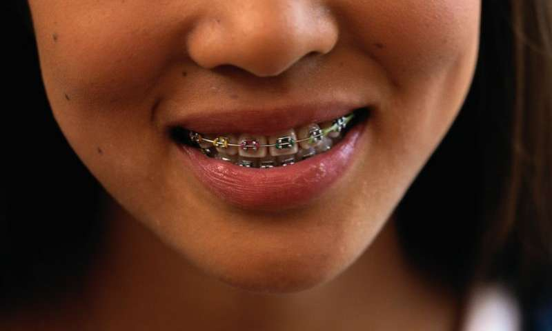 Five Common Signs you Need Braces