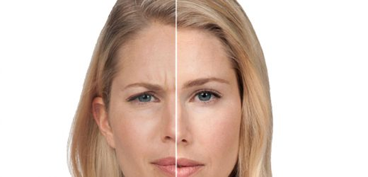 Common Differences in Costs, Results and Side Effects of Dysport and Botox