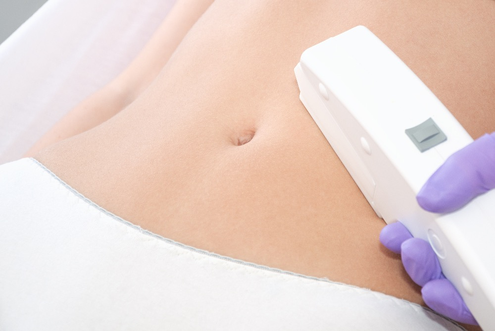 Laser Stretch Mark Removal Treatment – Know Popular Types and Benefits
