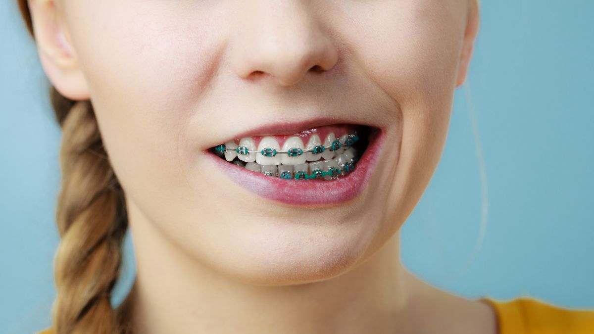 How to Manage Braces – Tips for Adults