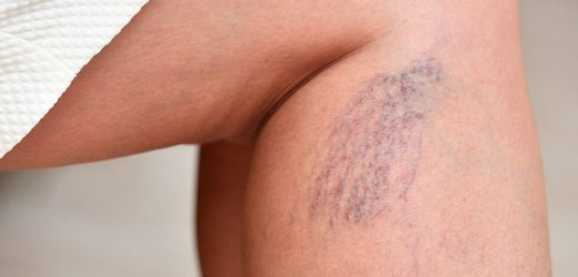 Spider Veins Causes, Treatment, And Prevention