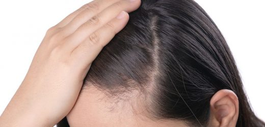 The emotional toll of female pattern baldness